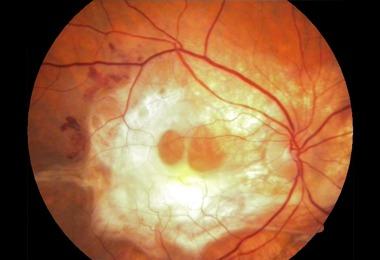 dr_aron_guimaraes_oftalmologista_campinas_santa_tereza_degeneracao_macular