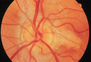 dr_aron_guimaraes_oftalmologista_campinas_santa_tereza_estrias_angl