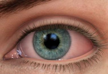 dr_aron_guimaraes_oftalmologista_campinas_santa_tereza_olho_seco