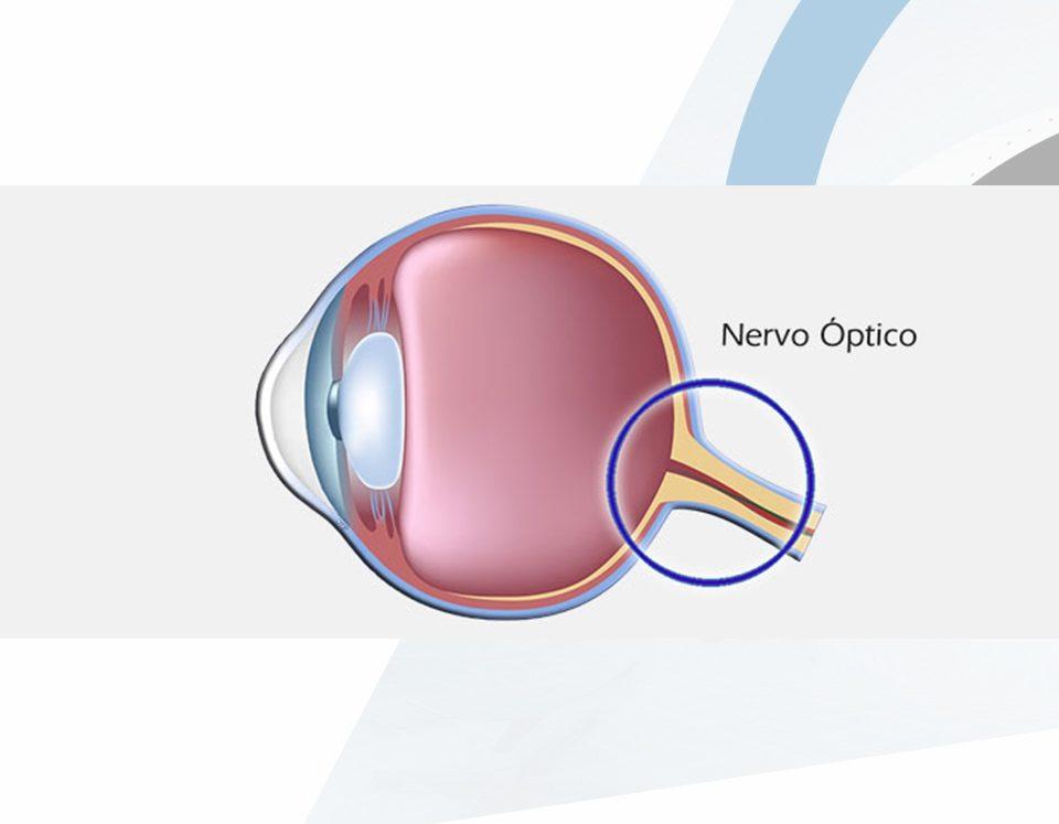 Nervo Óptico-Oftalmologista-Campinas-SP